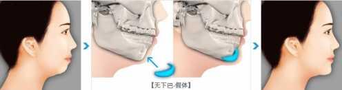 假体下巴整形前后对比照片变化大吗 下巴整形前后对比图