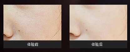 怎样去黑头收缩毛孔有效果好 去黑头缩毛孔的护肤品
