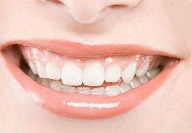 做烤瓷牙有三大优点 钛合金烤瓷牙好吗