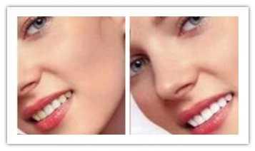冷光牙齿美白效果对比图 冷光美白效果对比