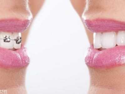 美容冠矫正牙齿好处和坏处 牙齿美容冠好吗